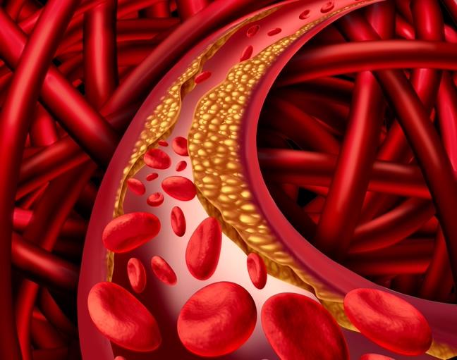 Miażdżyca – zalecane zabiegi ozonoterapia i kwas Alfa Liponowy
